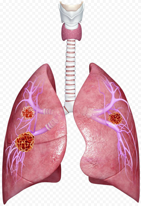 Lungs Lung Bronchus Bacteria Germs Illustration